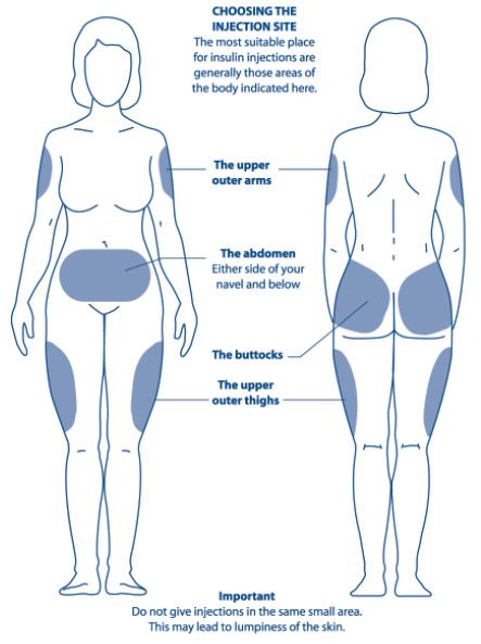 Diagram showing the areas of the body most suitable for insulin injections