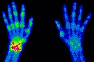 medical scan of hands showing hots spots